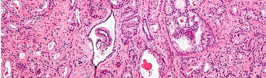 Курс радиотерапии по поводу лечения рака простаты можно сократить за счет более высокого суточного облучения