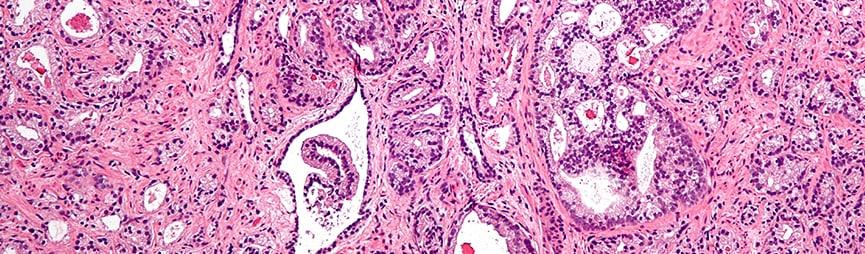 Комбинированный метод лечения рака простаты снижает смертность от заболевания