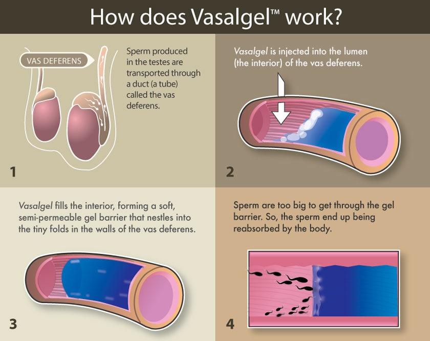 Ученые разработали новый метод мужской контрацепции