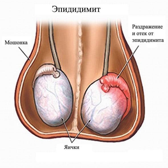 Воспаление яичек и слабая эрекция
