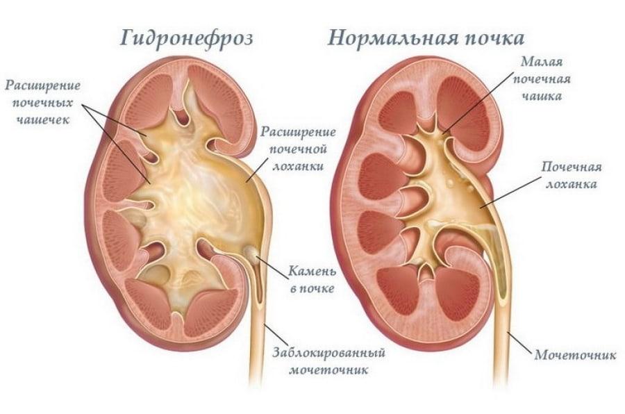 Гидронефроз - фото отличие здоровой почти от больной