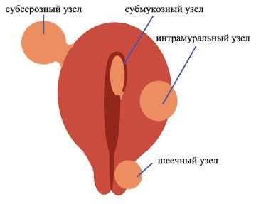 Интрамуральный узел в матке и беременность